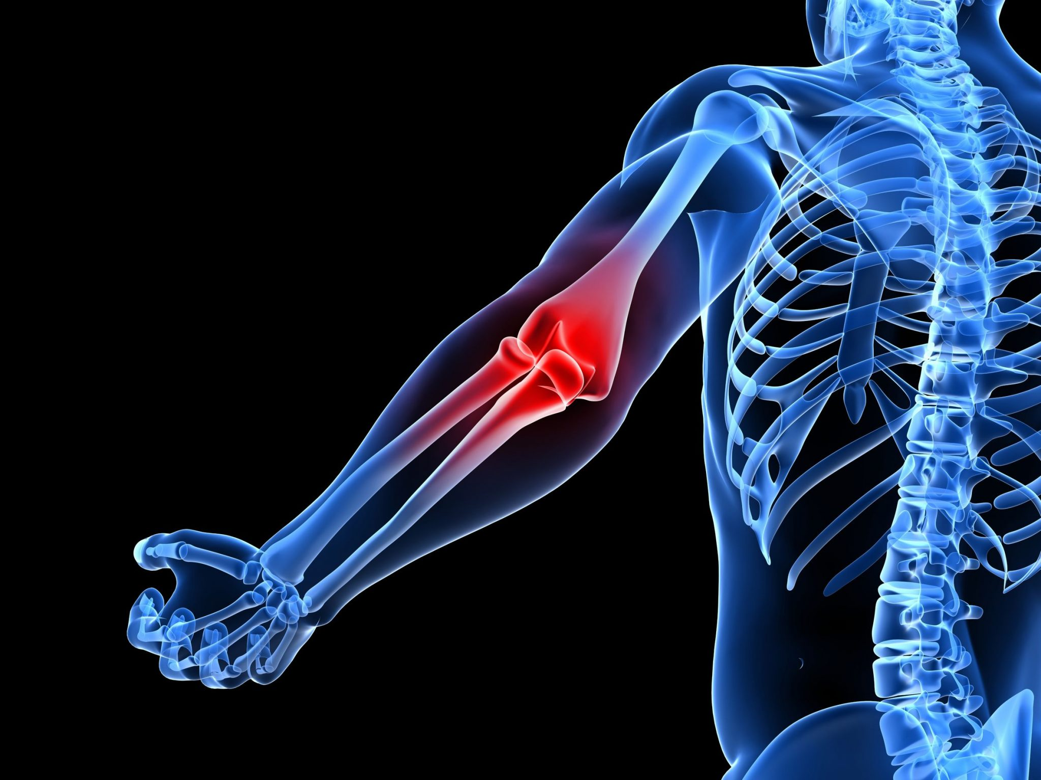 Common Causes of Elbow Pain - Blessed Physical Therapy, Pain Relief ...